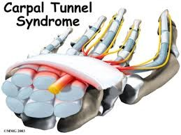 carpal tunnel with nerve