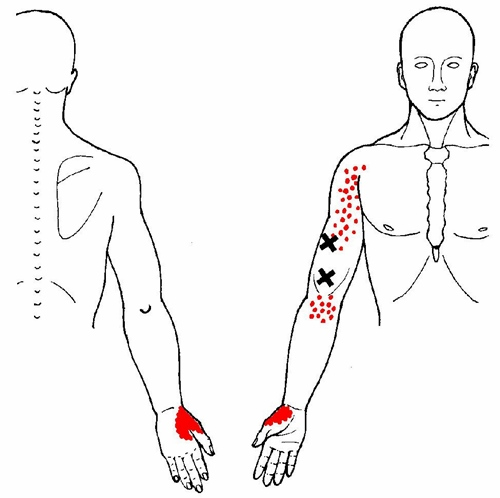 pectoralis major muscle diagram wrist and hand pain     massage therapy connections  wrist and hand pain     massage therapy connections