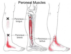 peroneal text1